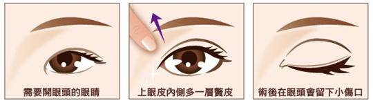 各种眼型适合的手术法